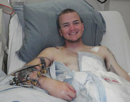 CJ received treatment at Walter Reed Hospital